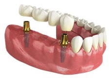 2 implants 4-unit bridge