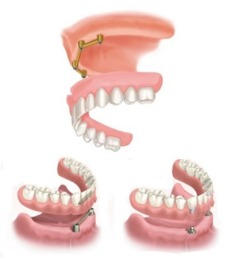 implants supported overdentures
