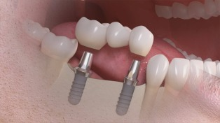 Multiple-Dental-Implants 2