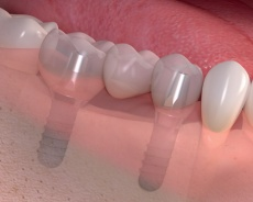 Multiple-Dental-Implants